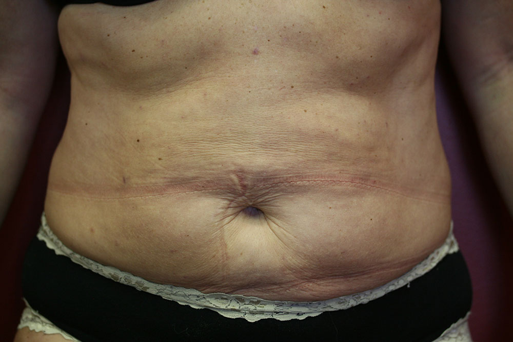 Liposculpture - After