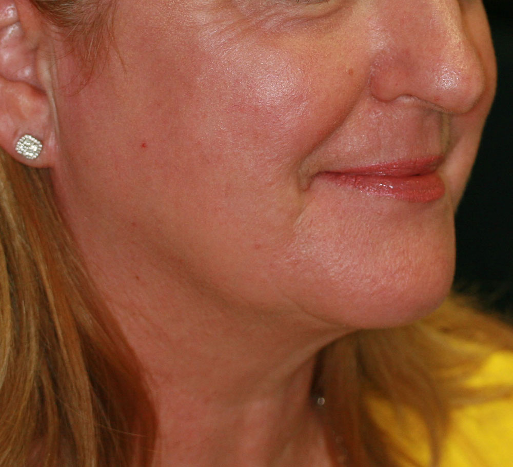 Collagen Induction Therapy (CIT) - After
