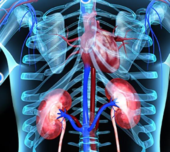 Acute Kidney Injury.png