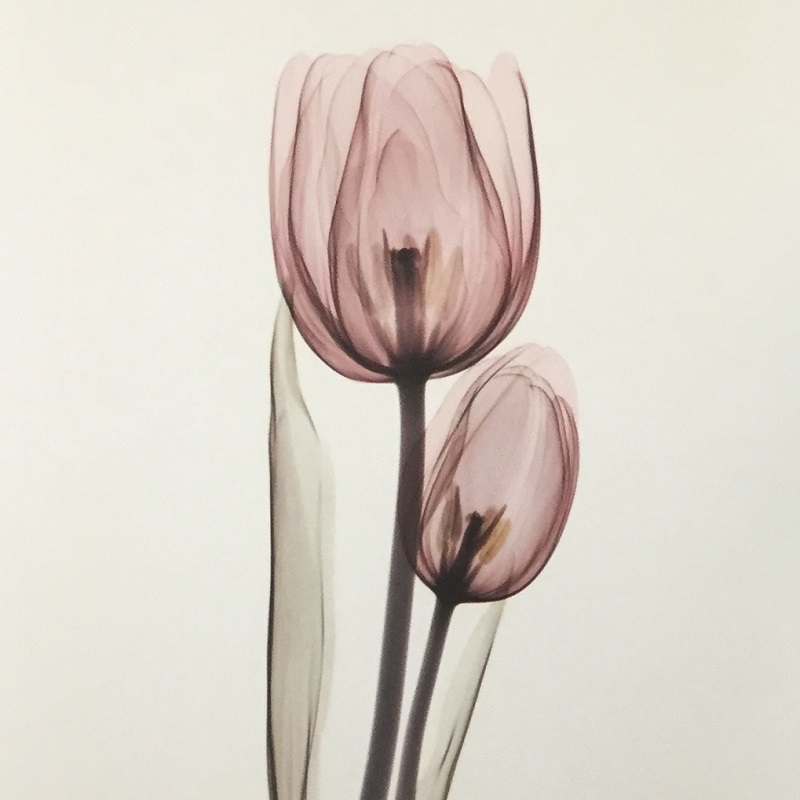 Tulipa Two   Tulipa Two is one of Albert Koetsier's most beloved pieces from the  Jewels of Nature  collection. The color in the original piece is hand-tinted with translucent paint to allow the X-ray to show through. It is reproduced very well in this print.