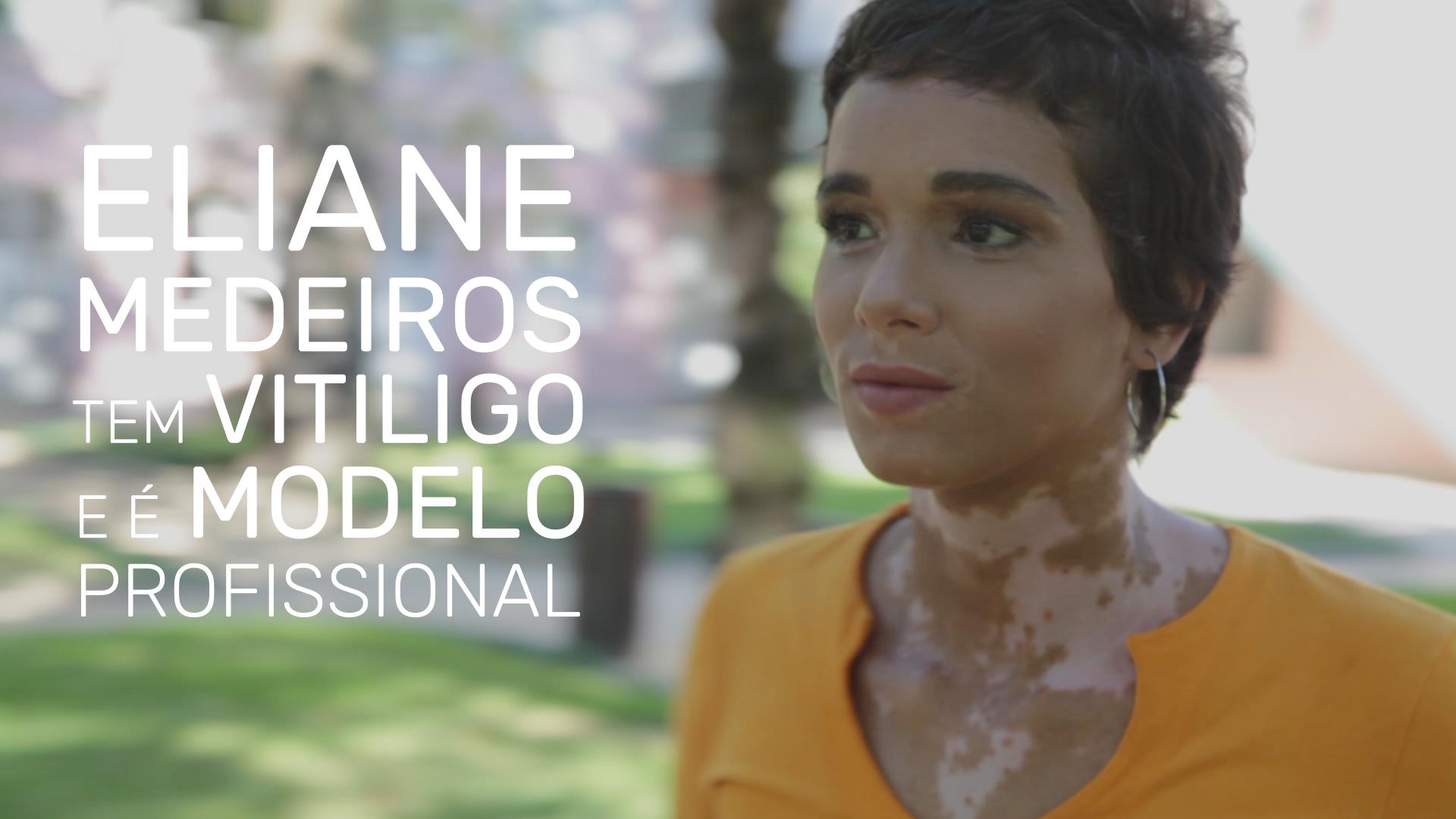 Campanha Vitiligo _1'15''.00_00_16_02.Quadro007.png