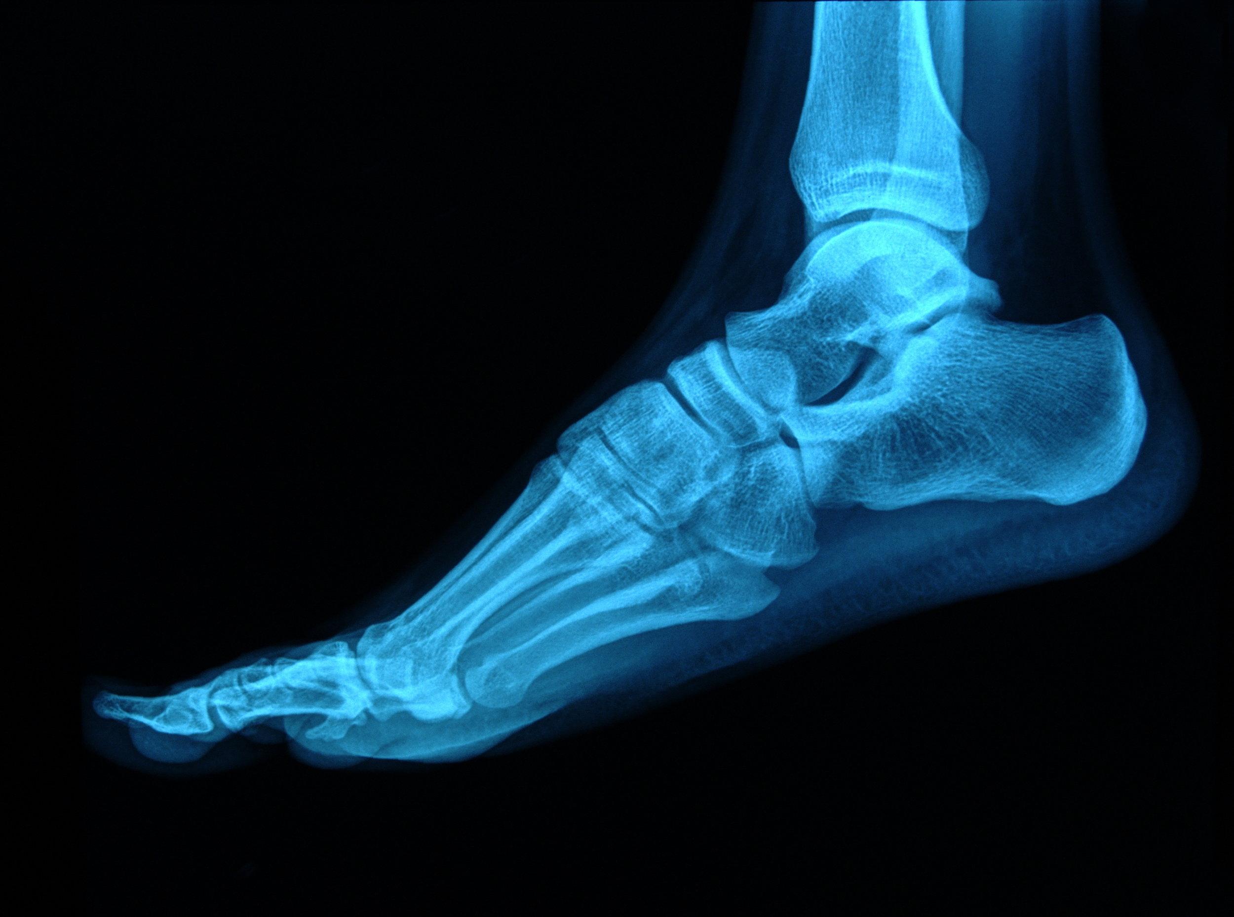 foot-surgery-valley-orthopaedic.jpg