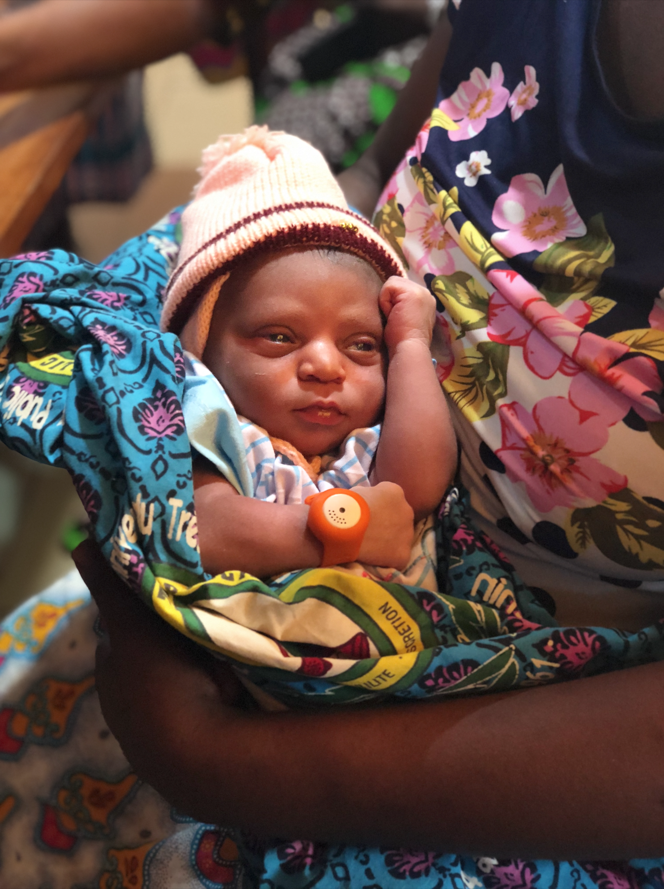 A baby from our UNICEF Benin pilot wearing the BEMPU TempWatch.