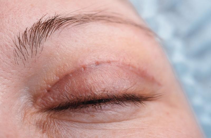 Blepharoplasty on upper eyelid