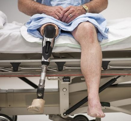 Patient-with-artificial-leg-sitting-on-hospital-bed.jpg