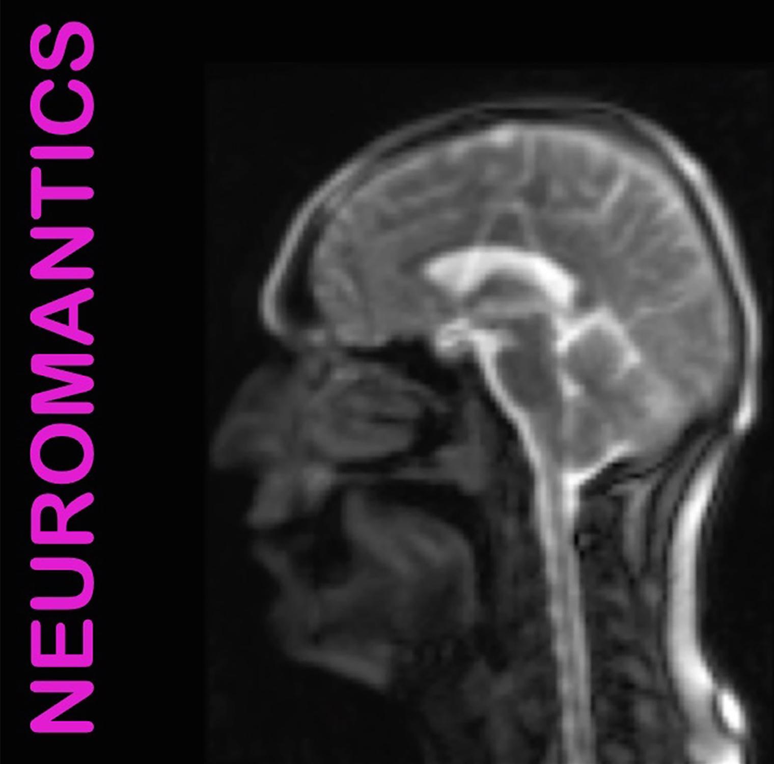 NeuromanticsCoverArtResize.jpg