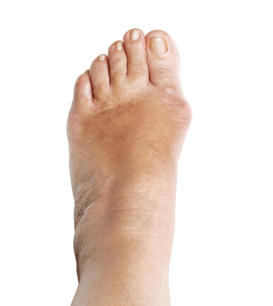 florida podiatrist treats bunions