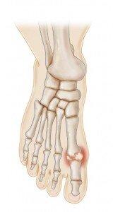 Gout Foot.jpg