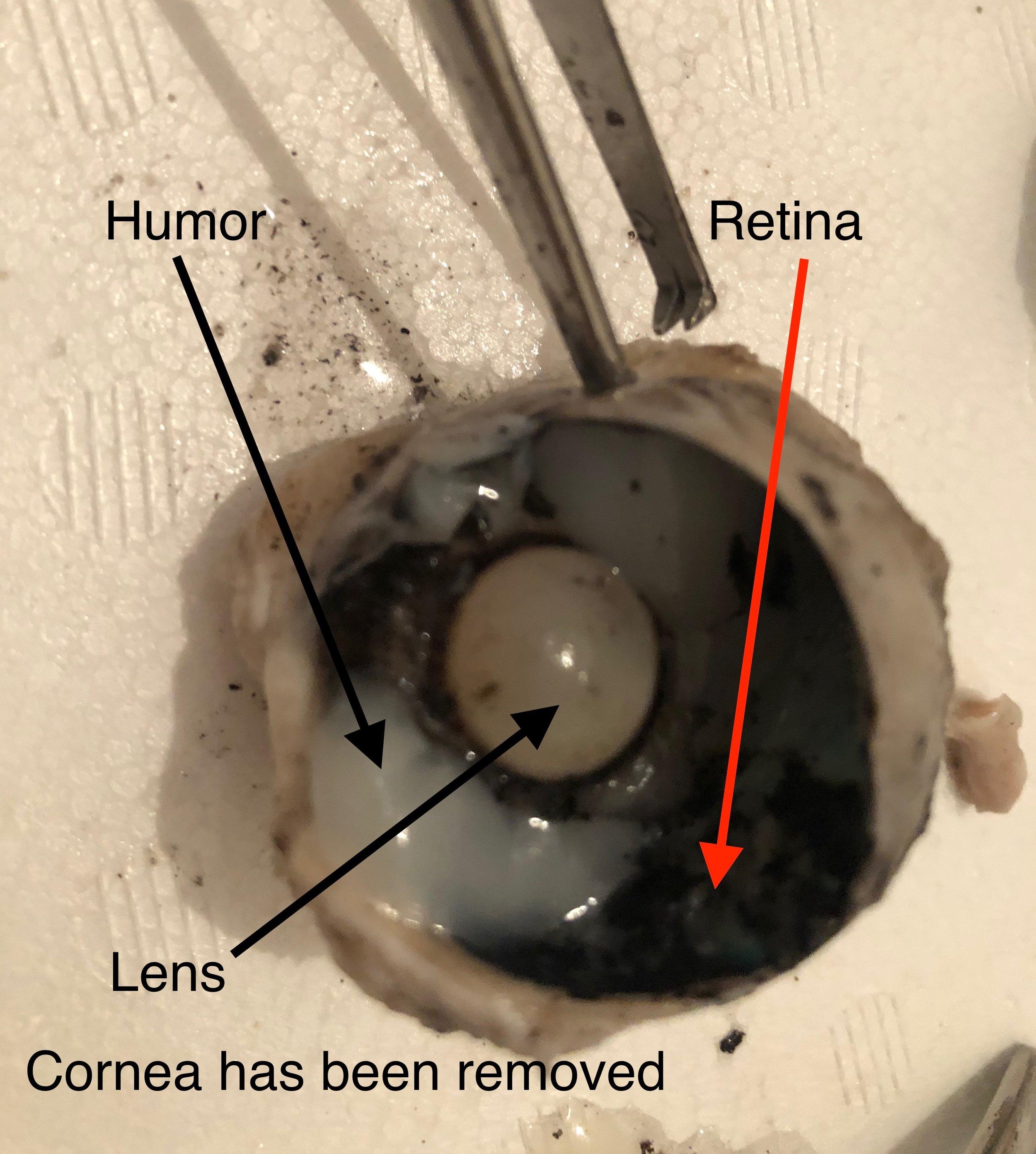 retina and lens.jpg