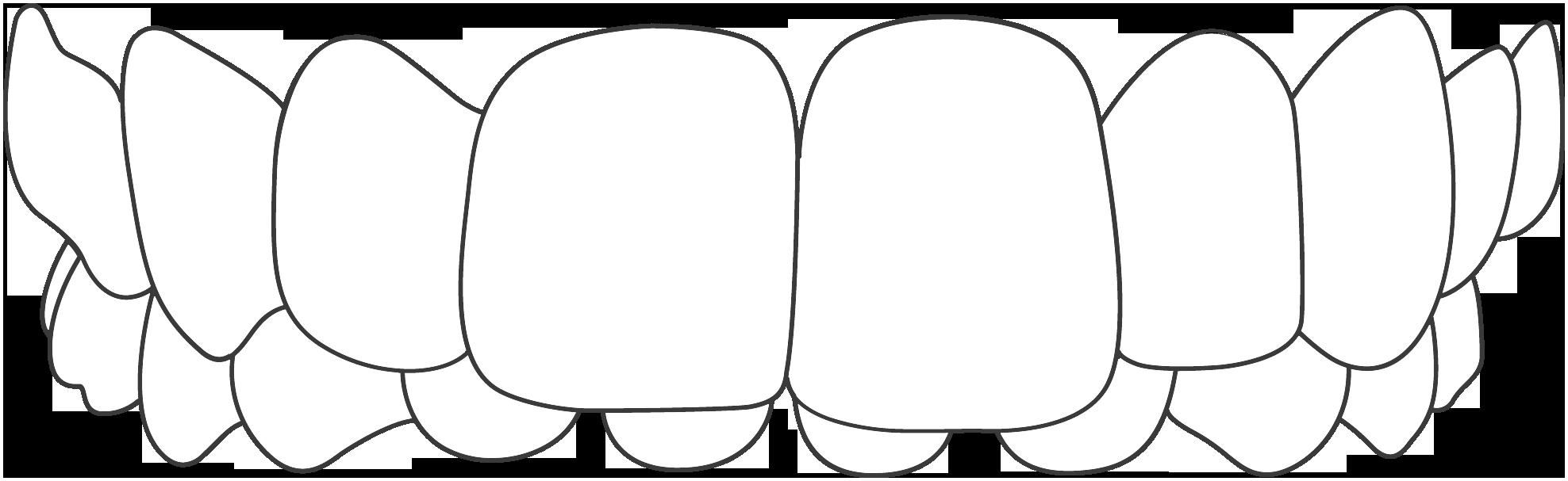 Överbett/Djupbett
