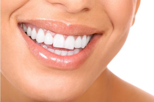 Estetisk tandvård - - Tandstensborttagning- Tandblekning- AirFlow-behandling