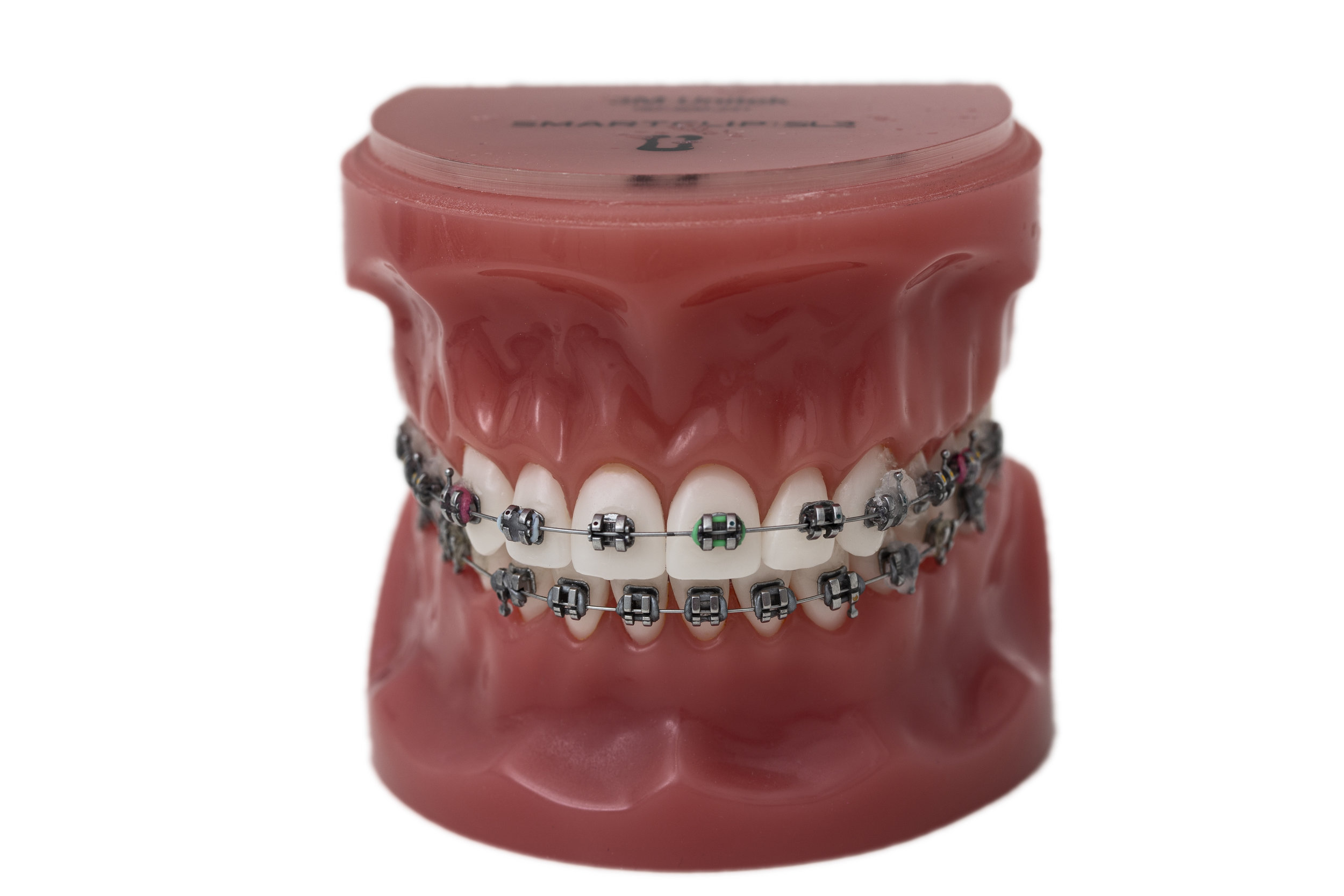 Klassiska rälsen - Rälsen är en klassisk tandställning och en välbeprövad metod för tandreglering som ger hållbart resultat. Det är den klassiska rälsen som omfattas av betalningsgaranti. Malmö Tandreglering erbjuder även tandfärgade brackets till den klassiska rälsen, vilket gör att den syns mindre och blir mer estetiskt. Boka tid…