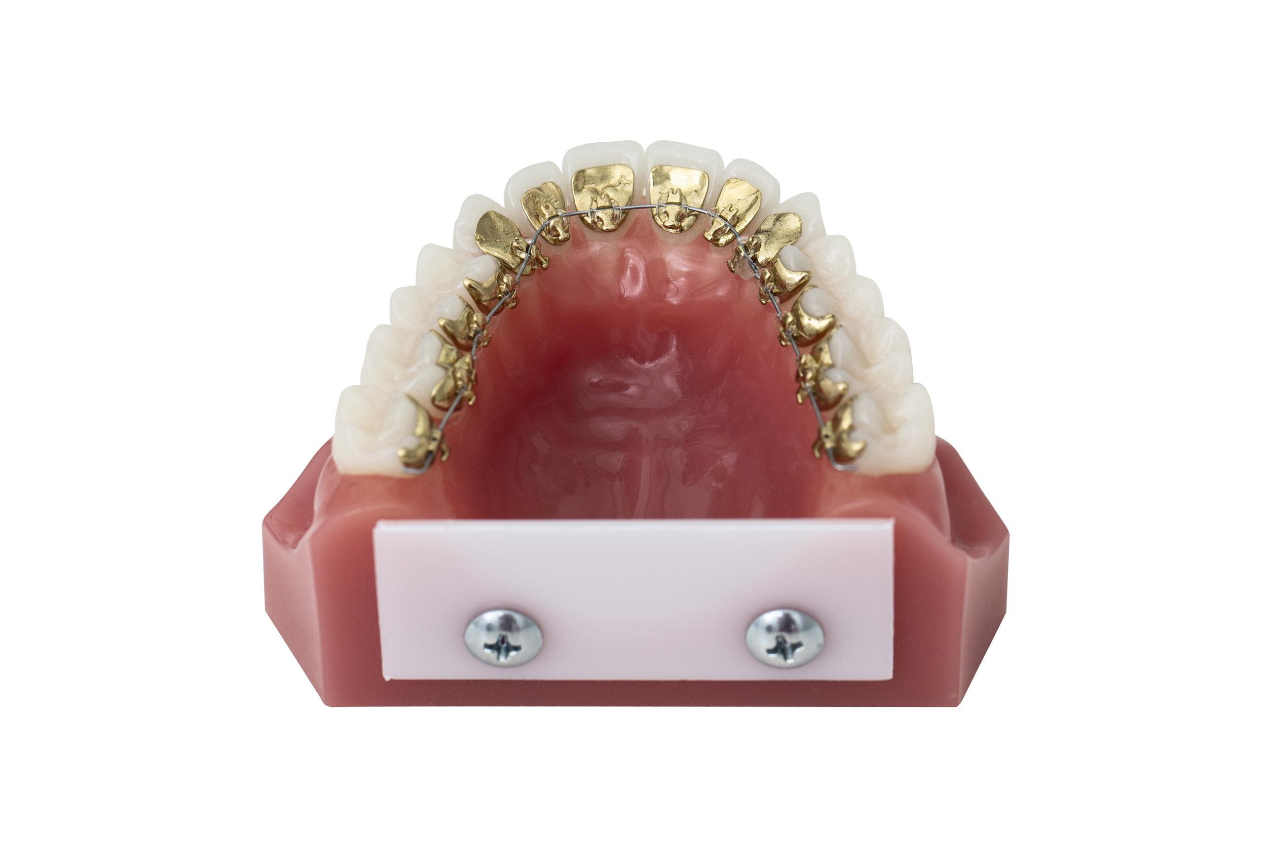 Incognito & WIN - Ett alternativ är tandställningar som fästs på tandradens insida, exempelvis Incognitoeller WIN. Den här behandlingen syns inte eftersom fästena sitter på tändernas insida. Tandställningen sitter fast och kan inte tas ut. Boka tid…