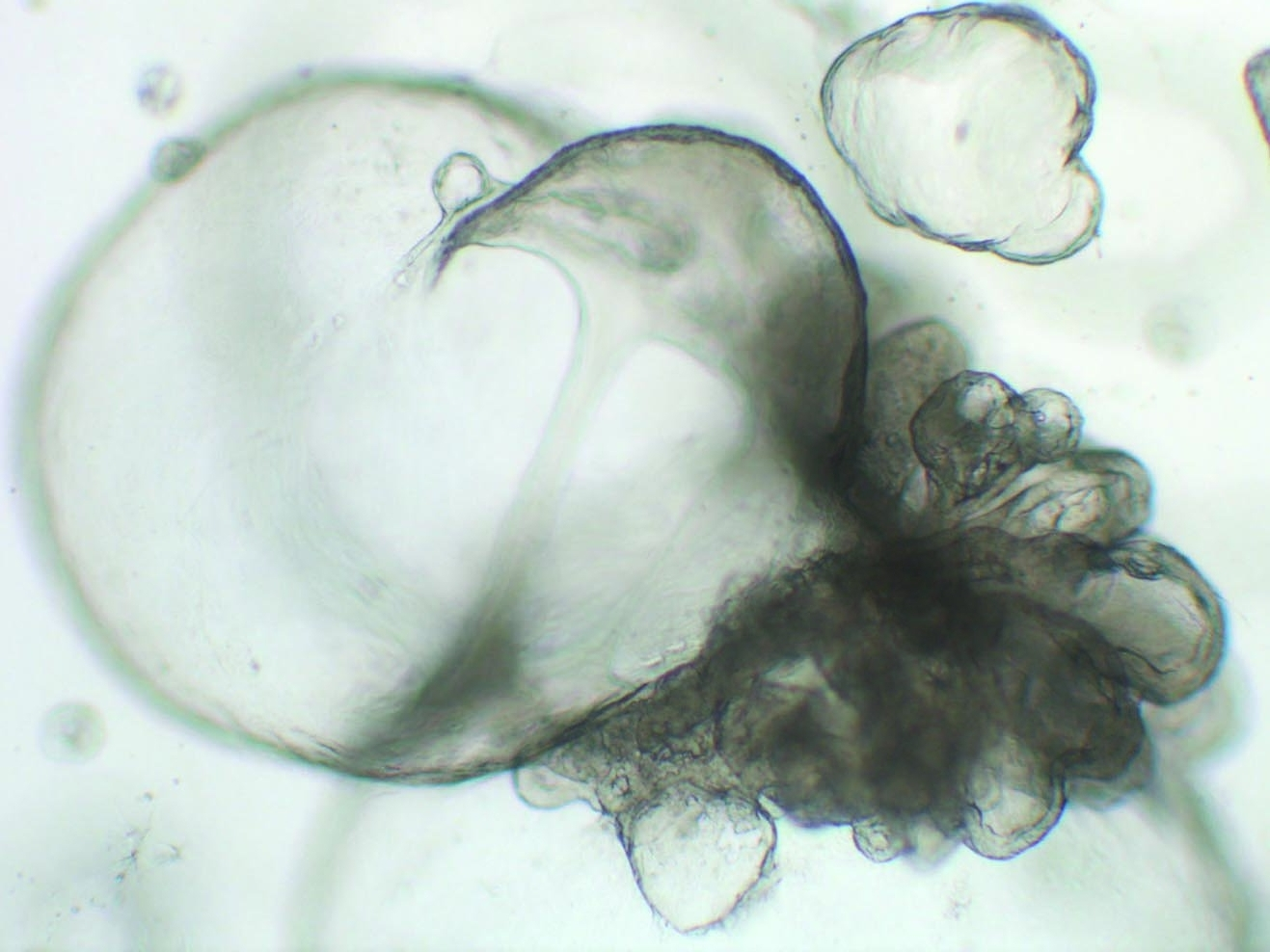 Intestinal Organoidsaka 'Mini Guts' -