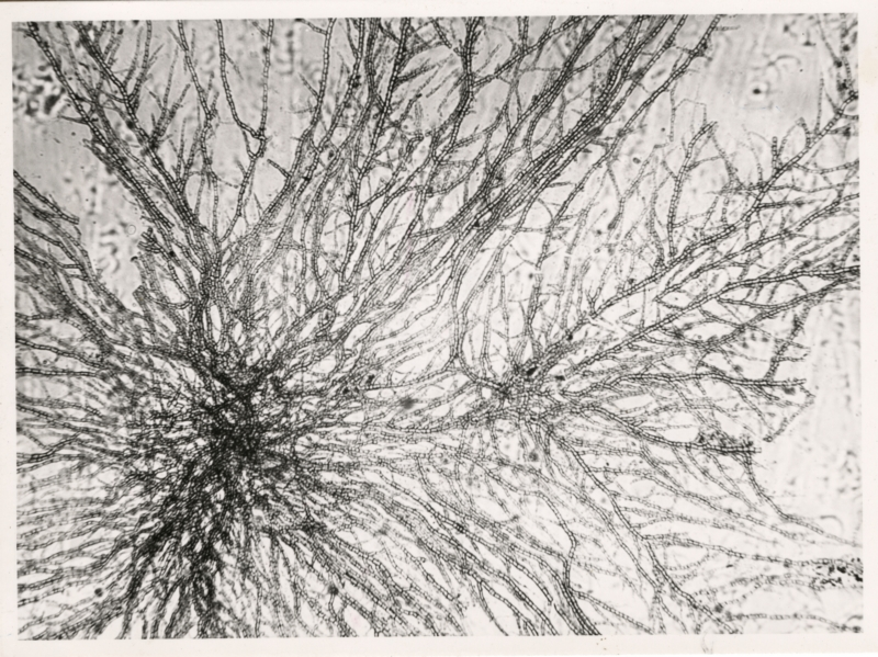 Schimmel van kunststof (polyetheen) regenkapje. Nederland, Delft, 1959(?). Mould on plastic (polyethene) rain cap. The Netherlands, Delft, 1959(?)