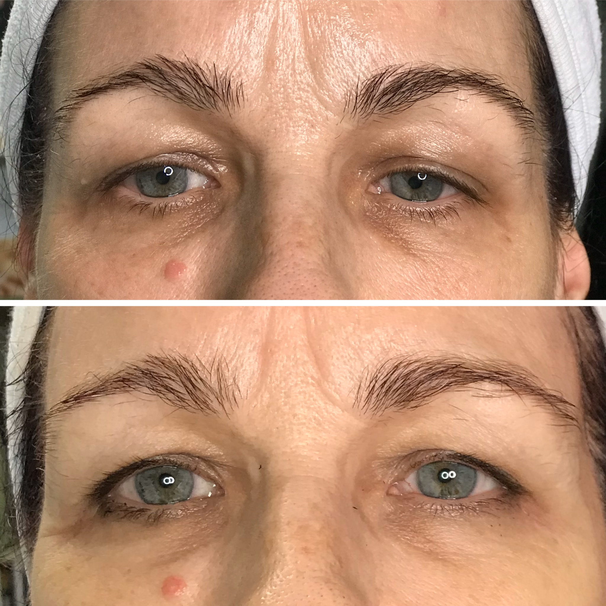 Eye treatment for firming and brightening.