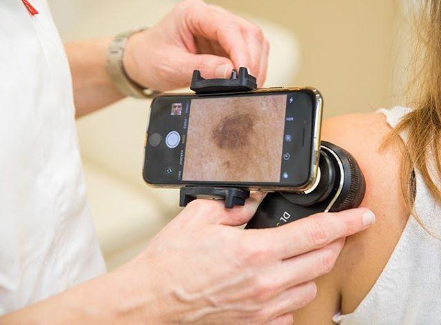 Preventivni pregled kože može spasiti život! #poliklinikacutis #dubrovnik #dermatology #dermatologist #melanoma #prevention