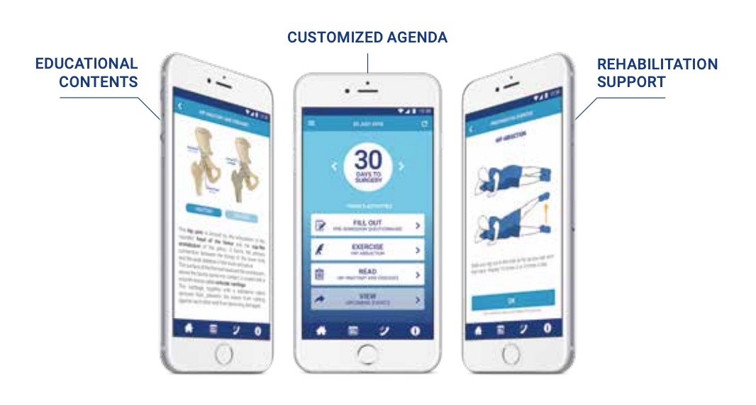 - A mobile application to support and improve your surgical care experience before, during and after your surgery