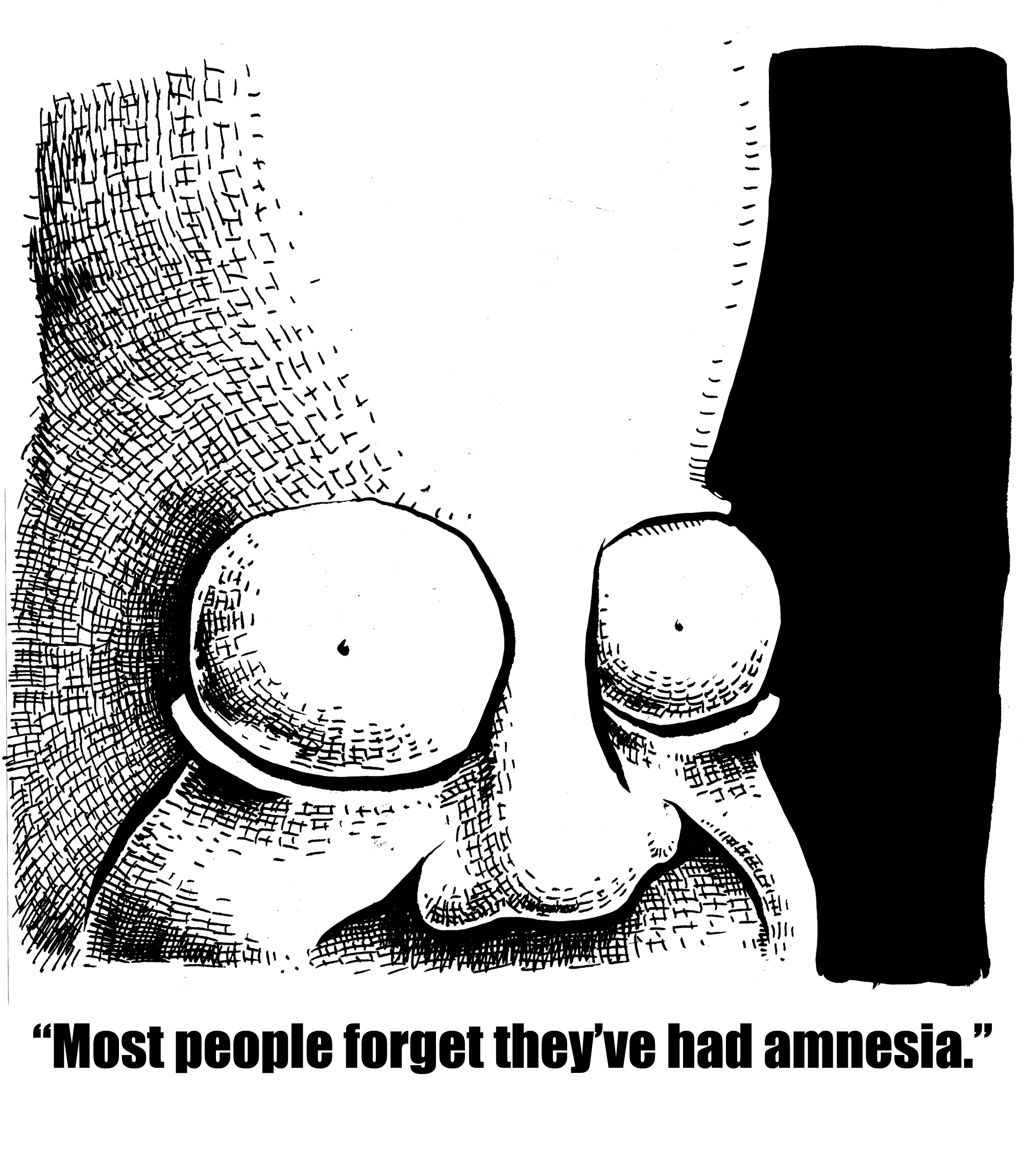 Most People Forget They've Had Amnesia
