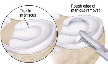 Meniscectomie.jpeg