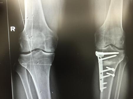 Fig. 1. Pre-operatieve berekening van exacte hoeveelheid correctiegraad, door bepaling van correctie van de mechanische assen door het been.  Aan de andere knie is reeds eerder een opening wedge proximale tibia-osteotomie uitgevoerd.