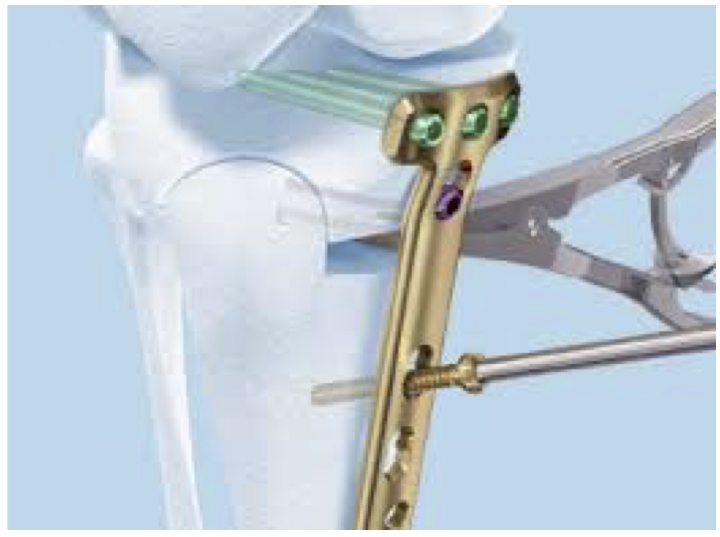 Fig. 2. 3D beeld van de techniek en het resultaat van een opening wedge proximale tibia osteotomie