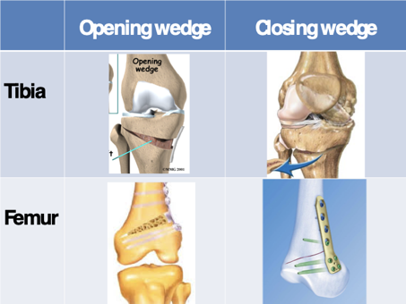 Fig. 3. Voorstelling van verschillende osteotomie-opties rondom de knie: opening wedge of closing wedge (kolommen), thv proximale tibia of distale femur (rijen)