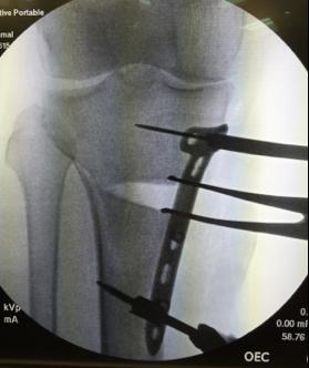 Fig. 4. Per-operatieve fluoroscopiebeeld tijdens proximale tibia opening wedge osteotomie