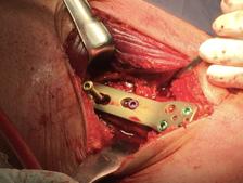 Fig 5b. Intra-operatief beeld van opening wedge distale femur osteotomie, met fixatie van de osteotomie door een anatomisch gevormde, hoekstabiele plaat