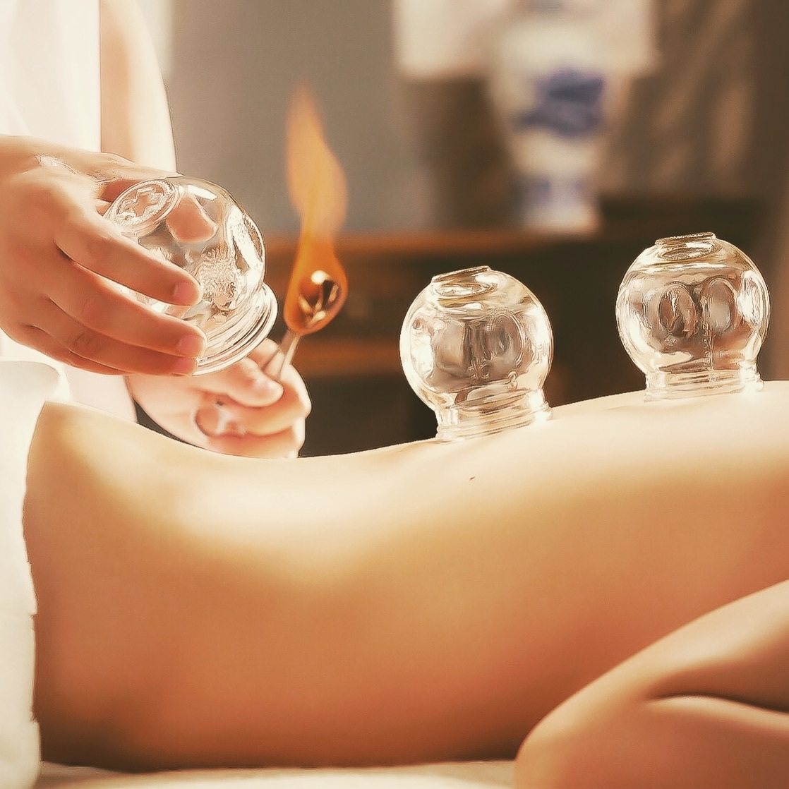 Cupping is an incredible healing technique that has been around for thousands of years. -