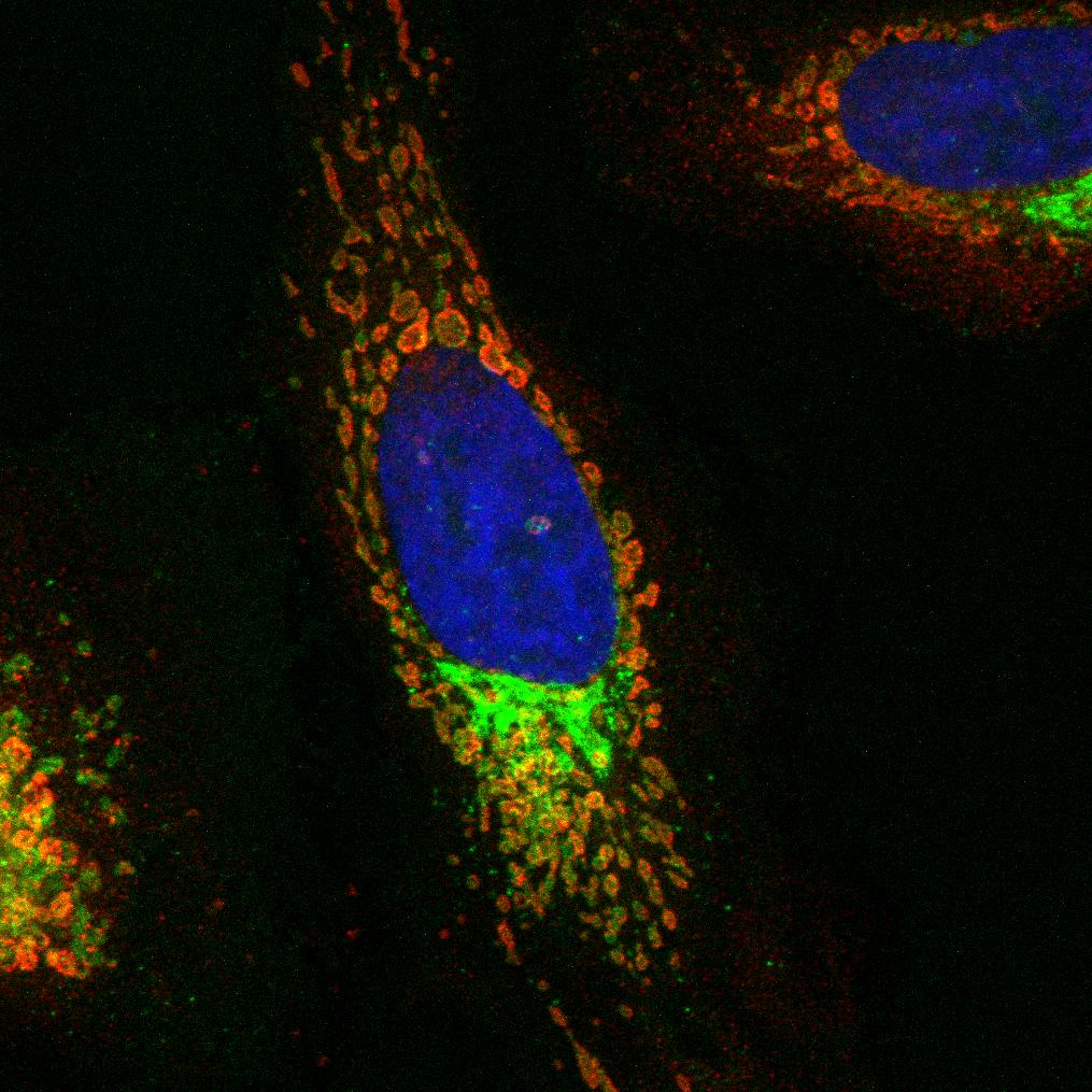 Pretty Immunofluorescence