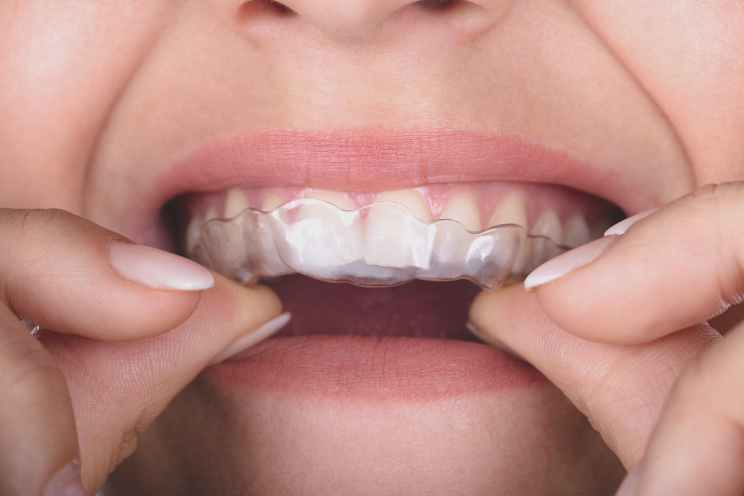 No metal wires or brackets, Invisalign is comfortable.