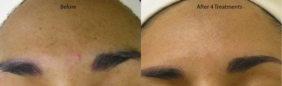 HydraFacial MD facial before and after.