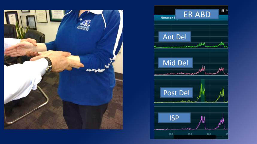 Apparent good ER power - but Middle deltoid recruited by subtle shoulder abduction adding to strength