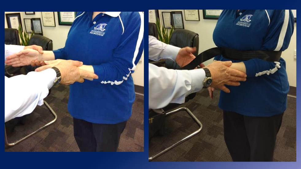 Shoulder abduction prevented by  Wakefield Shoulder Strap  - stopping Deltoid activation
