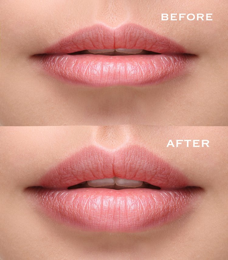 Downtown-Laser-and-Anti-Aging-Before-After-Lips.jpeg