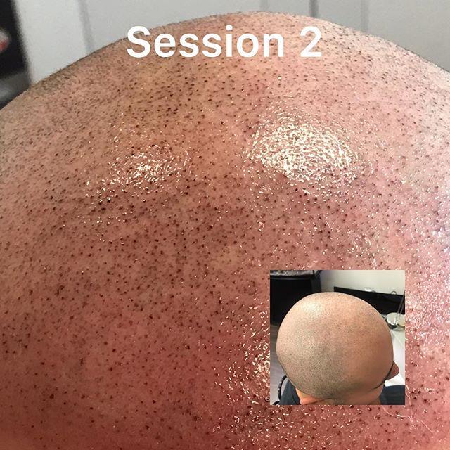 Hairline Restoration and Density Treatment #2 SMP=Results  Non-Surgical Procedure Minimal Down Time  Confidence Booster  Book your free consultation today! Call (909)477-8888 or DM TODAY‼️‼️. #ScalpGodSMP #SMP #PMU #Scalptattoo #PMUontario #iemicroblading #hairtattoo #prphairrestoration #corona #orangecounty #losangeles #sanbernardino #upland #chino #ietattoo #scalptreatment #scalppigment #trichology #lagunabeach #pasadena #santaclaritasmp #palmsprings #🏁victorystore