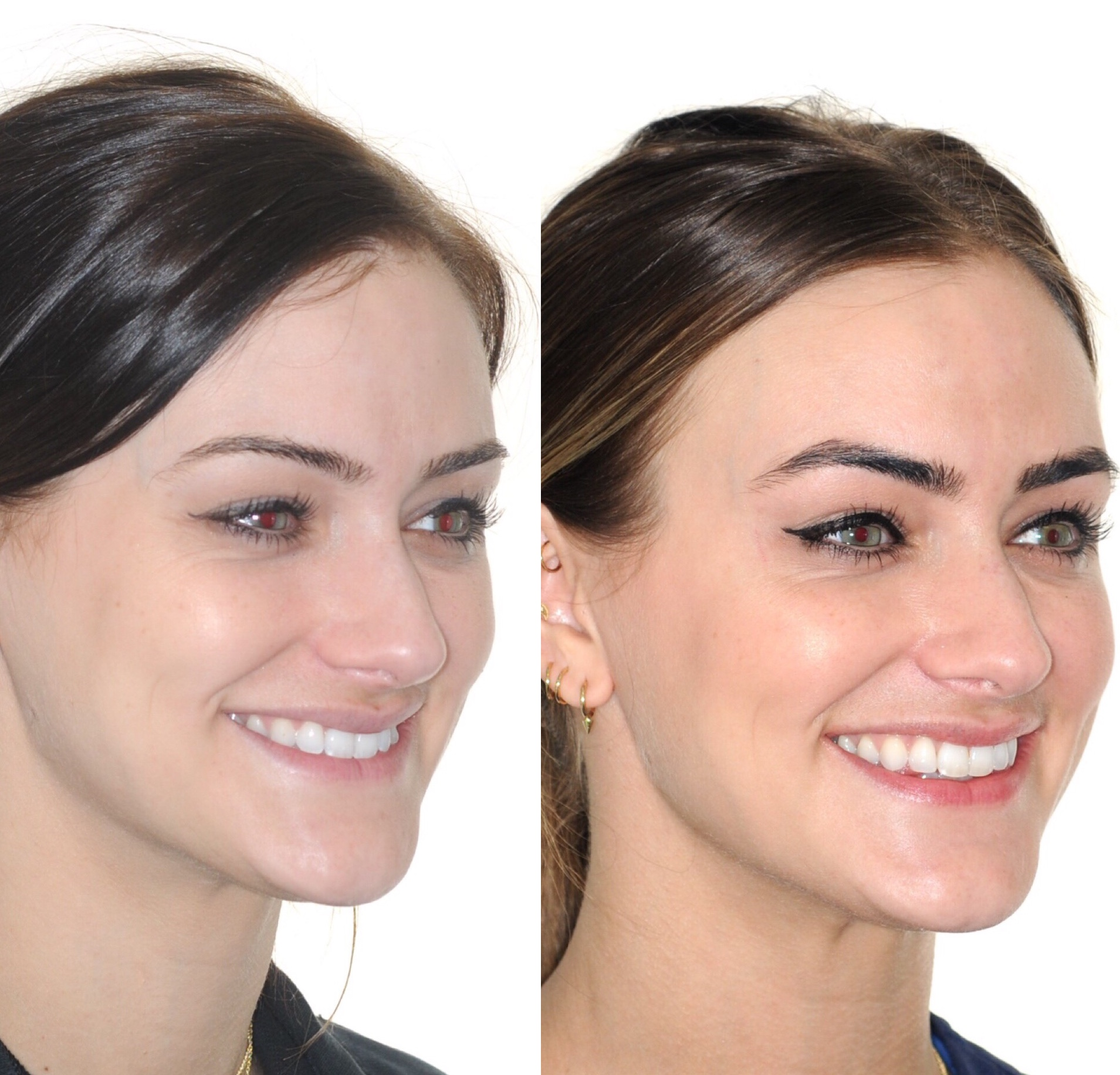 Before & After: In these images, you can clearly see that this patient's smile is much wider and her jaw has moved forward creating a more youthful appearance.