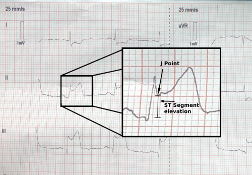 Figure 3:  Snapshot of a 12 Lead ECG with changes consistent with an Inferior STEMI. J point elevation of 3.5mm (0.35mV) from the isoelectric line in leads II, III and aVF. Reciprocal changes can be seen in I and aVL.