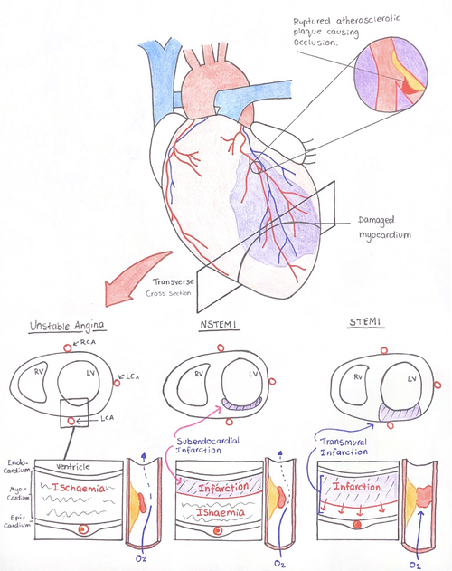 Figure 1:  Transverse cross sectional image of the heart, shows the differentiating pathophysiology between variants of ACS