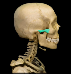 zygomatic-arch.png