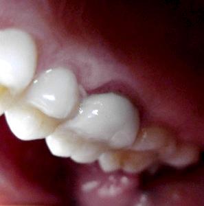 Tooth #3, upper left: suspicious gum activity?