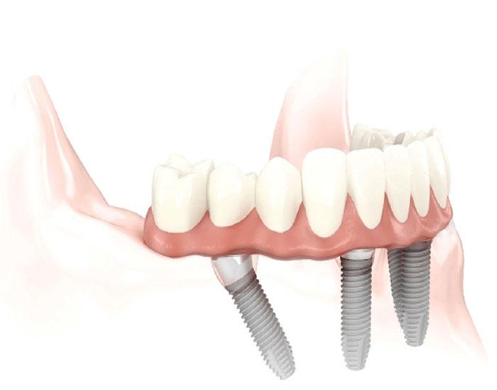 treatments-allon4-dentures.jpg