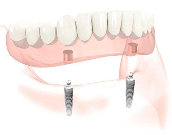 treatments-clipon-dentures.jpg