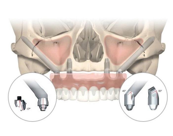 nibelzygoma-full-teeth-replacement.jpg