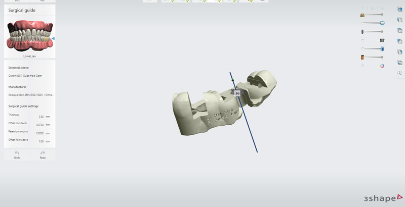 posterior-implant-planning6.jpg