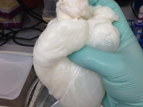 artificial organs and tissue replacement -