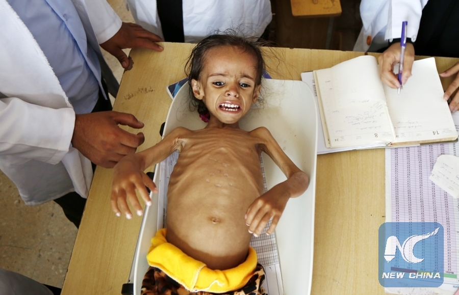 A malnourished 4-year girl is weighed while she receives treatment at a malnutrition department in a hospital in Sanaa, Yemen, on Sept. 2, 2018. Millions of people in the war-torn Yemen are unable to secure one meal a day. (Xinhua/Mohammed Mohammed)