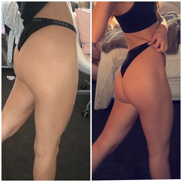 🍑 GAINS !!!! @mareecaia 's Week 7 progress on the 'KEEP IT PEACHY' training guide 🙌 • Hard work & consistency = results 💗💪🍑 Join the team at Www.lilysocial.com