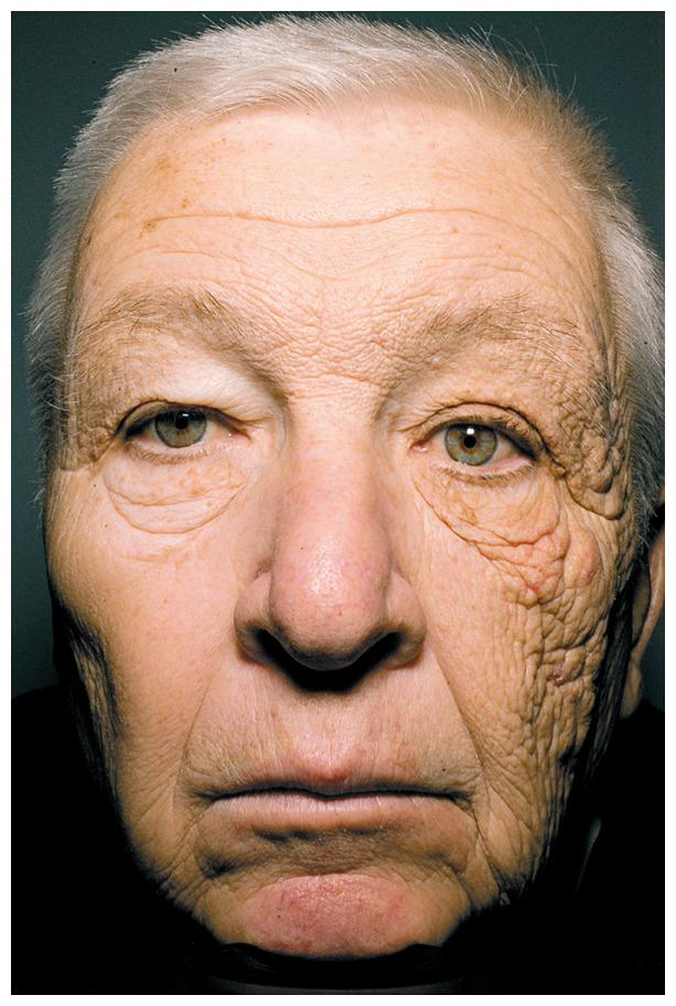 28 years of UVA ray damage from driving (NEJM)